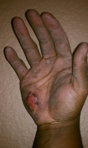 Hand, burned